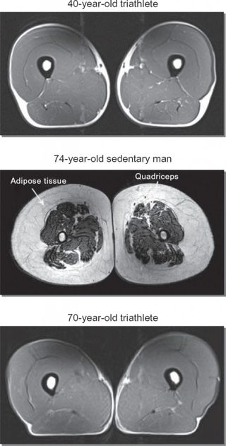 Triathlete-aging-muscle-519x1024
